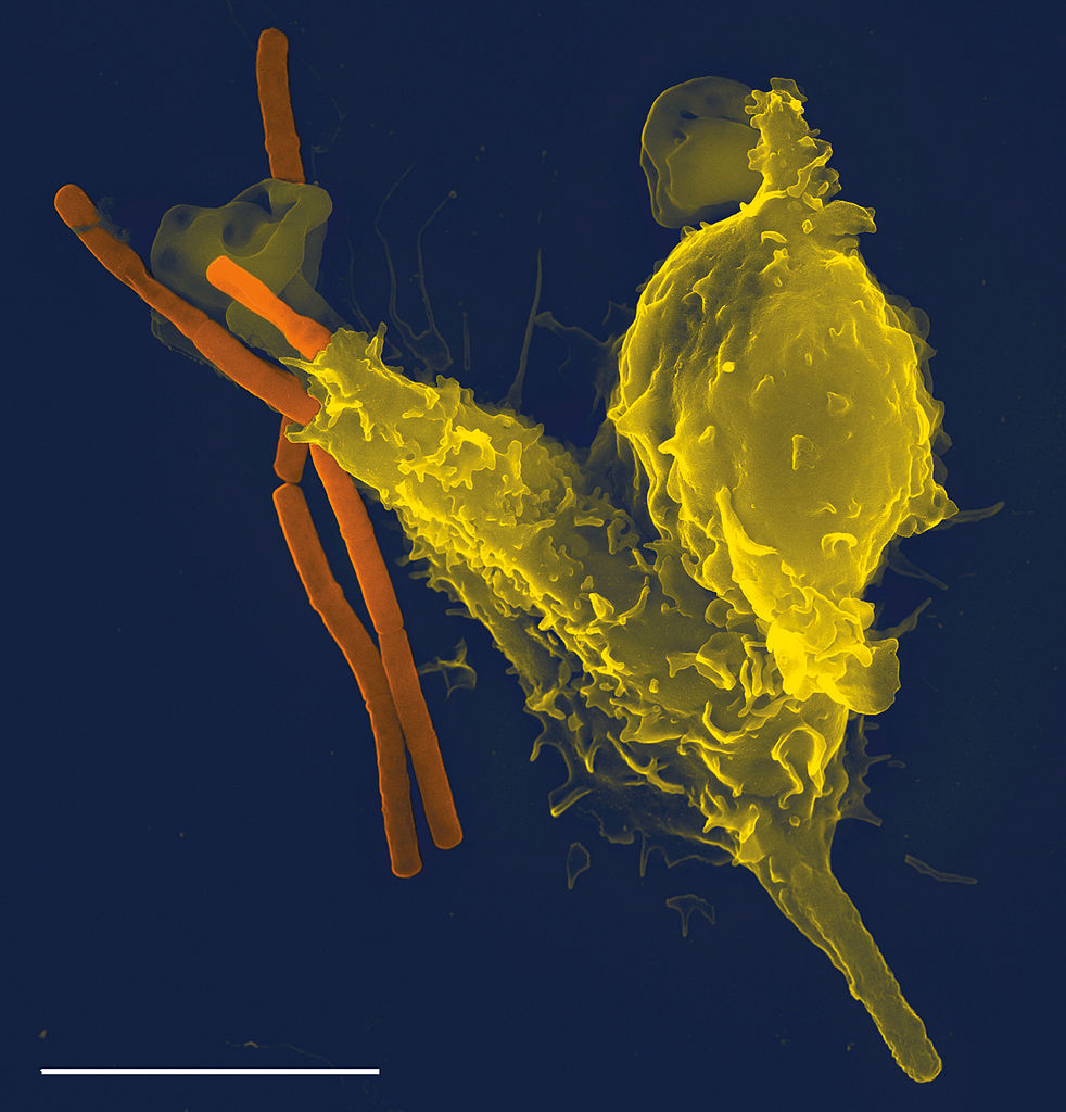 Scanning electron microscope image of a neutrophil, a cell from the innate immune system (yellow), engulfs anthrax bacteria (orange); scale bar = 5 micrometres.   Body cells that experience stress, wounding, or sense the presence of bacteria, produce cytokines and other signals that trigger the innate immune response, and attract immune cells into the tissues.   Some of these cells ('phagocytes') like this neutrophil, engulf and digest the invaders, whilst others ('granulocytes') secrete granules of cytokine, histamine and various types of oxygen free radicals, all of which enhance the inflammation response.  Proteins in the blood, the 'compliment system', also condense onto and coat unwanted bacterial invaders and other particles.  This targets them for destruction by phagocytes, or removal from the blood stream in the spleen (Image: Wikimedia Commons)