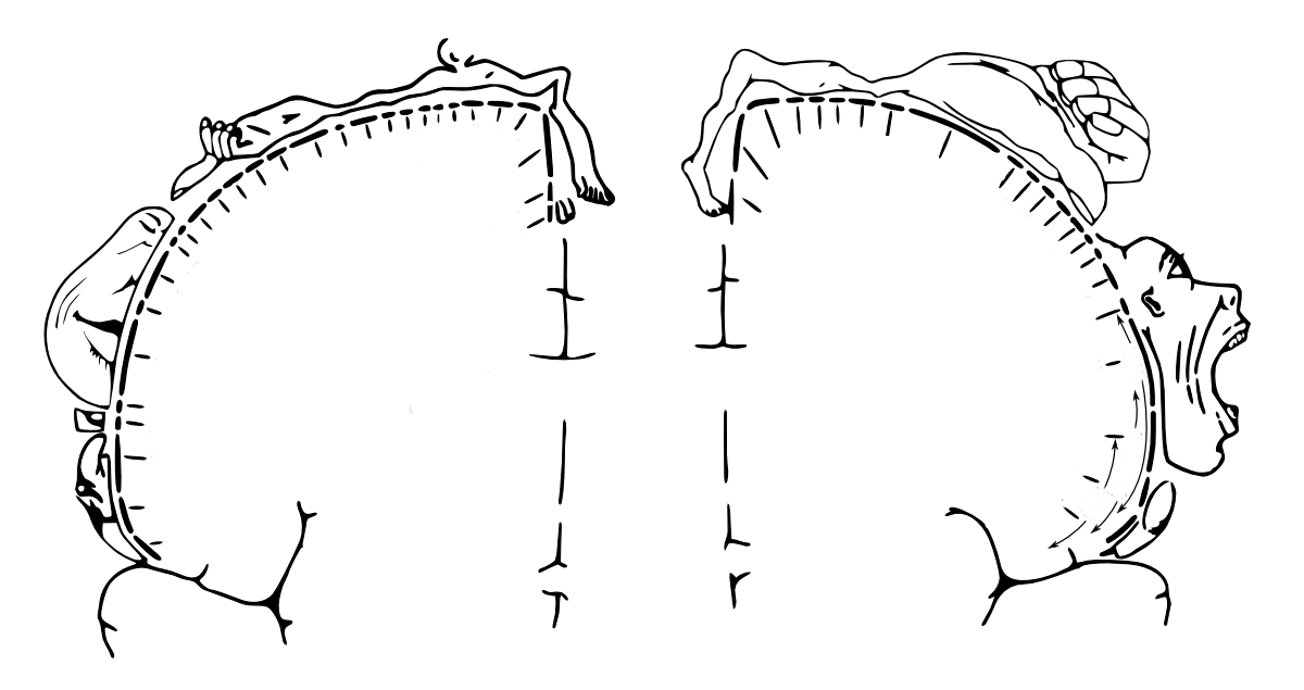 Wilder Penfield used the 'homunculus' or 'little man' of European folklore to produce his classic diagram of the body as being mapped onto the brain.  A version of this is shown here; mirror neurons map incoming information onto the somatosensory cortex (shown left) and outputs to the muscles from the motor cortex (right).  These brain regions lie adjacent to each other (Image: Wikimedia Commons)