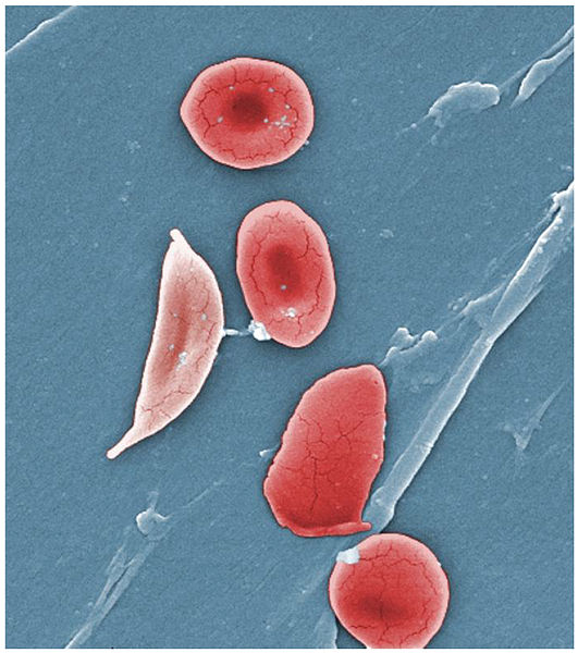 An artificially coloured scanning electron micrograph of red blood cells from a sickle cell anaemia sufferer.  The red blood cells become crescent-shaped (sickle shaped) at low oxygen concentrations.  The mutation in the beta-globin gene that causes this condition is more common in populations from malaria-prone regions.  Malaria parasites invade red blood cells and reproduce asexually; this progresses more slowly in sickle cells, reducing the severity of the disease for the human sufferer, and increasing their chances of surviving the infection (Image: Wikimedia Commons)