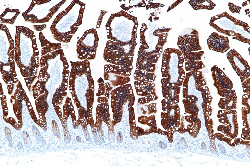 A thin section of the small intestine wall, stained for CK20 protein (found in the mucosal lining).   The lining of our intestines is a vast sensory surface, whose cells are nourished by fatty acids, vitamins and other compounds produced by bacterial fermentation.  The finger-like projections (called villi) visible in this section, form our main absorptive surface for nutrients, and sense the presence of both friendly bacteria and harmful pathogens (Image: Wikimedia Commons)