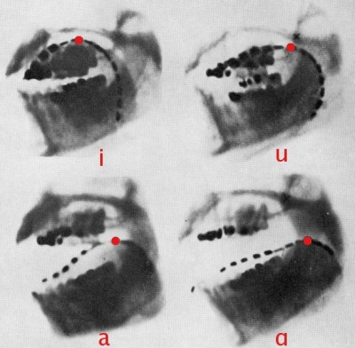 X-rays of a human jaw, taken by Dr H. Trevelyan George at St. Bartholomew's Hospital, London, in January, 1917.  The black dashed line in these x-rays is a thin metal chain on the tongue's upper surface.  The pictures reveal how it changes position when producing the 'cardinal' vowels [i, u, a, ɑ].  These sounds are voiced by controlling the flow of breath and causing vibrations in the vocal cords.   English consonants are voiced or voiceless, and are made using five main movements.  We touch the lips together or against the teeth, place the tongue between or onto the back of the teeth, or against the hard palate, and lift the tongue against the soft palate.  We also use an open-mouthed turbulent flow of air to make aspirated sounds as in the 'h' of 'hair' (Image: Wikimedia Commons)