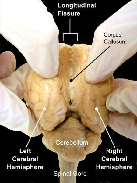 In the hands of the investigator, this sheep's brain shows the expanded cerebral hemispheres(the mammalian neocortex) and cerebellum.   Only mammals have a cerebral cortex, although the pallium of birds and reptiles is frequently referred to as 'cortex' and fulfils at least some similar functions.     (Image: Wikimedia commons)